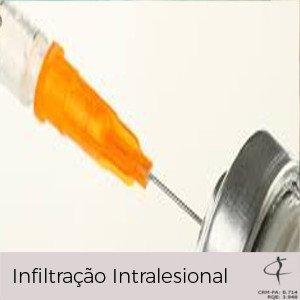 Infiltração Intralesional